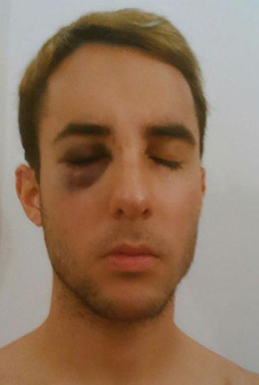 homofobia-agresion-guarda_seguridad-Renfe_MDSIMA20141215_0424_36