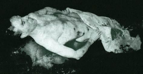 espinal CADAVER
