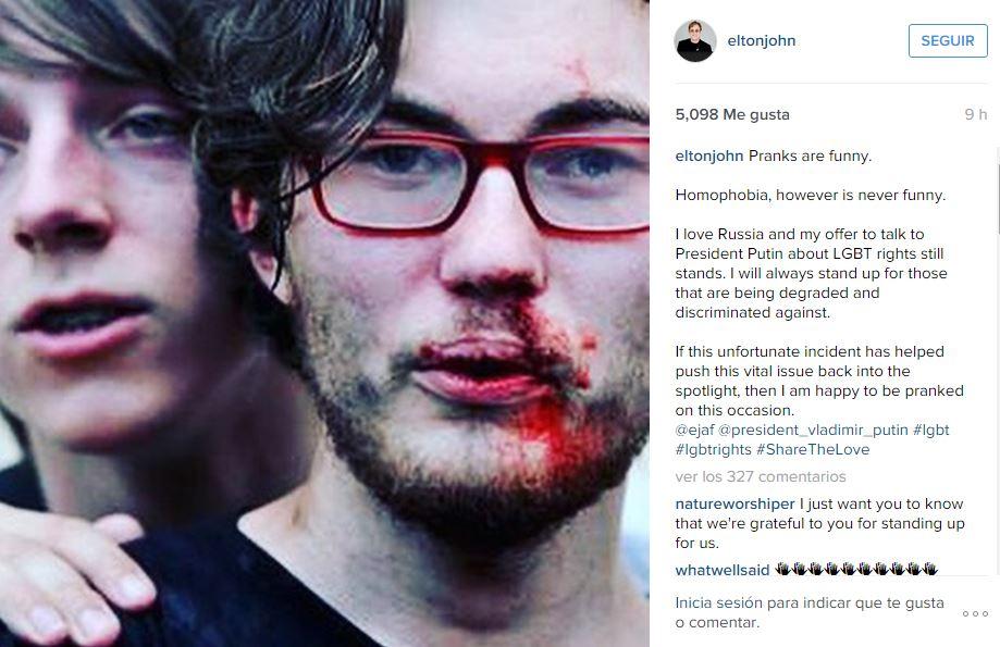 Instagram-Elton-John-la-homofobia-nunca-es-divertida