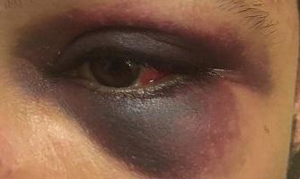 colin-ashley-eye-668x400