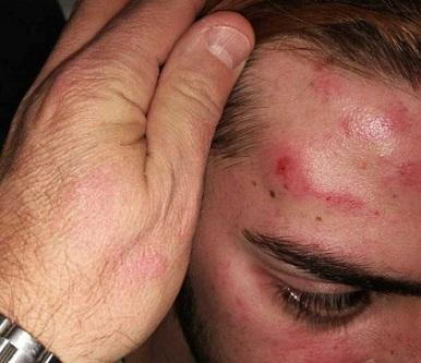 agresion-homofoba-mallorca-534x462