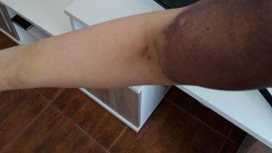 lesiones-elizabeth-chica-trans-algeciras-300x169