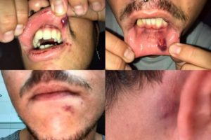 fotos-presunta-agresion-homofoba-san-fernando-300x200