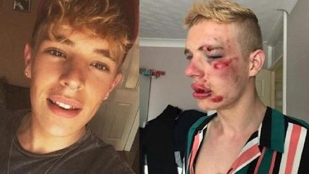 Brutal-paliza-a-un-chico-de-22-años-en-Reino-Unido-Preston