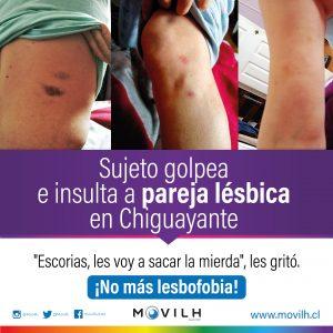 ataque-lesbofobico-Chihuayante-Movilh-300x300