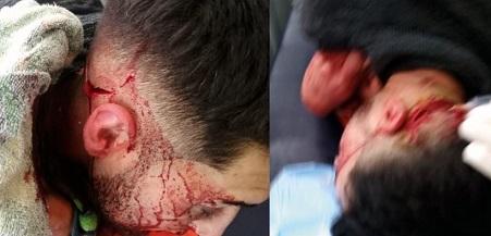 Ataque-homofobia-Valparaiso-Movilh_web-820x394
